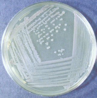 Bacterial Culture Media: classification, types and uses