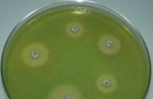 Pseudomonas aeruginosa growing on Mueller Hinton Agar