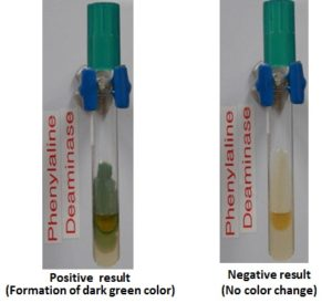 Phenylalanine deaminase test results
