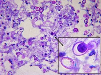 Broad based bud of Blastomyces dermatitidis