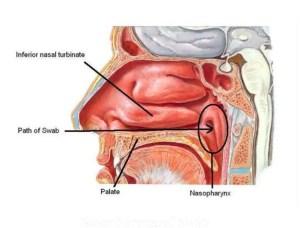 Nasopharyngeal swab
