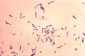 Club shaped Corynebacterium diphtheriae in Methylene Blue Staining