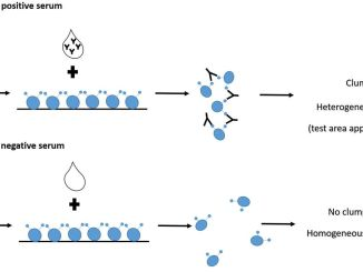 Heterophile-antibody testing