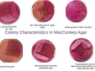 Colony characteristics in MacConkey Agar