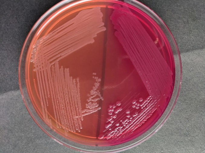 Pale (NLF) and pink (LF) colonies on MacConkey Agar