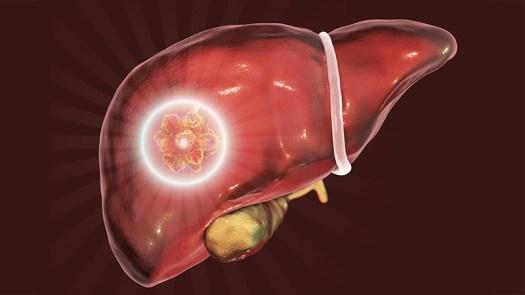 Risultati immagini per microbioma intestinale tumore