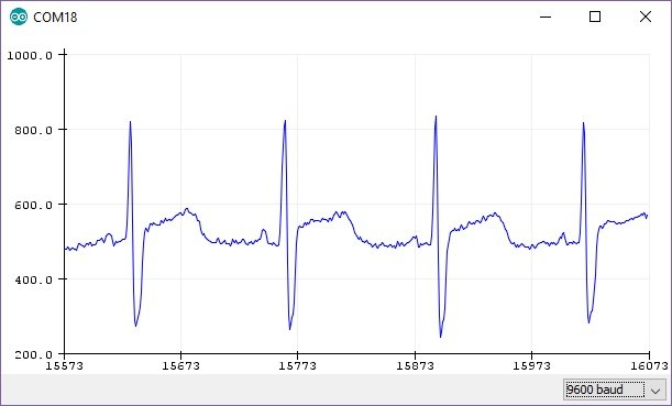 AD8232 Heart rate monitor serial plot in Arduino IDE