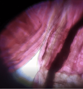 WORM DIGESTIVE TRACT