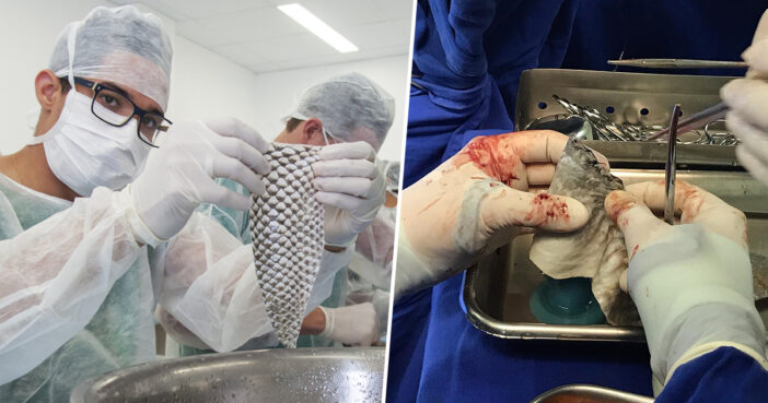 First transgender woman in the world undergoes vaginal construction with fish skin