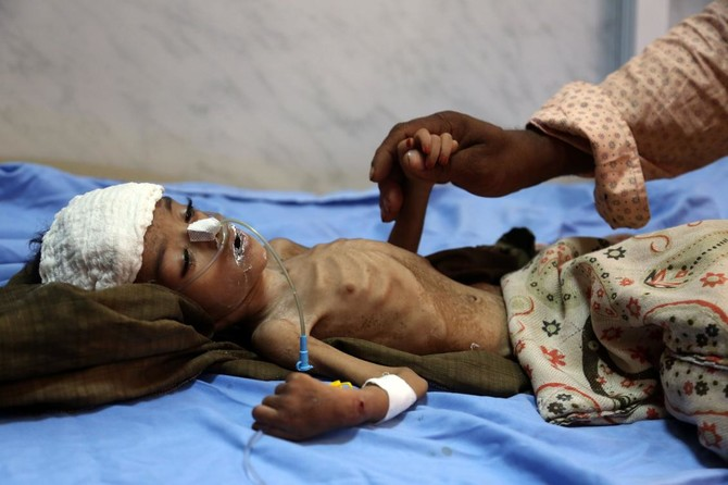 File photo showing a child hospitalized with malnourishment at a hospital in Yemeni port city of Hodeidah. (AFP)