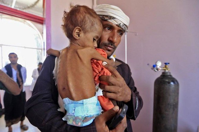 A Yemeni man carries his child who is suffering from malnutrition into a treatment center at a hospital in Sanaa. (AFP)