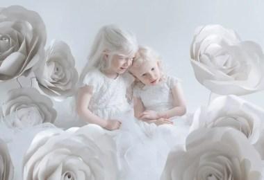 meninas albinas - A beleza dos albinos