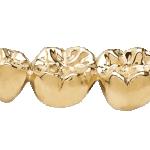 sell dental gold, dental gold, sell gold, st. paul, minneapolis, mn