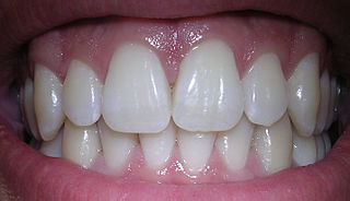 http://commons.wikimedia.org/wiki/File:06-10-06smile.jpg