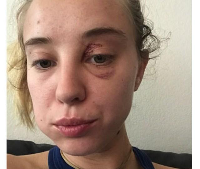 Cris Strokes Beats Up Haley Reed