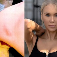PHOTOS: Injuries of Avenatti's lover who claims he hit her, dragged her across the floor in her underwear and called her an 'ungrateful f@cking bitch'