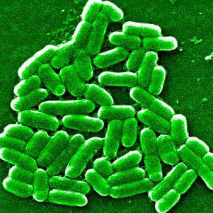 E. Coli-Bakterien (Public Health Wales)