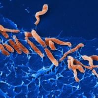 Helicobacter pylori (Helmholtz-Zentrum für Infektionsforschung)