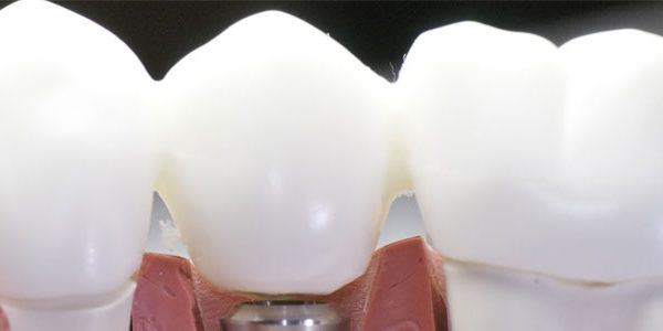 dental implants in fresno