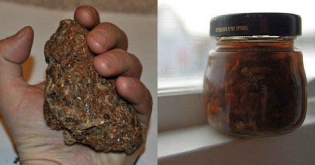 The healing qualities of propolis