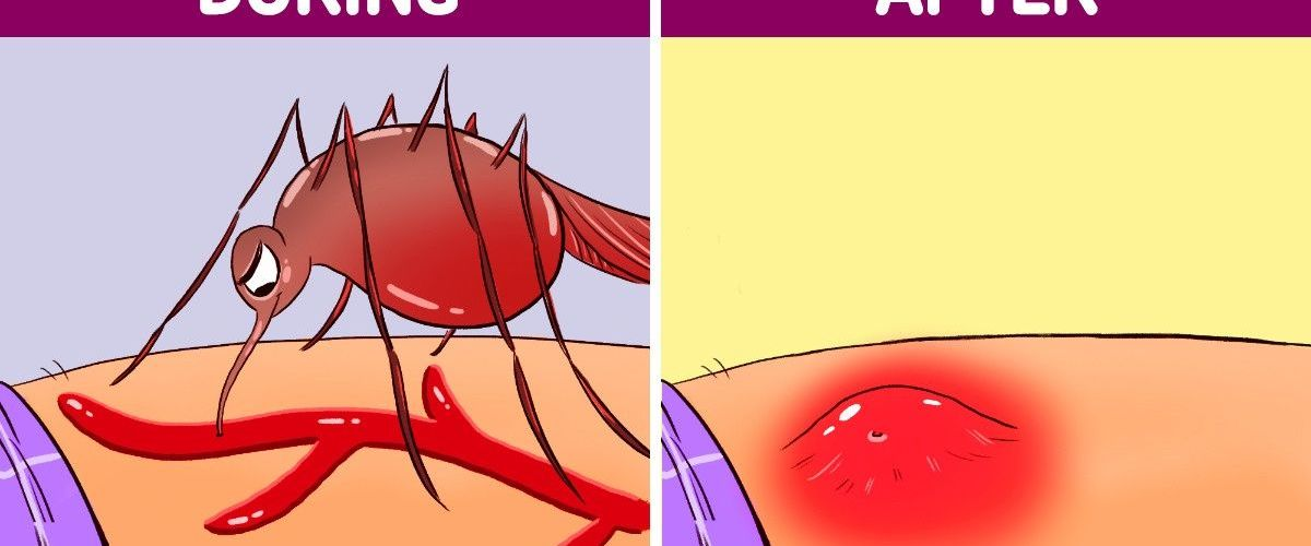 Things That Happens to Your Body When a Mosquito Bites You