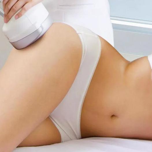 ultracavitacion-murcia