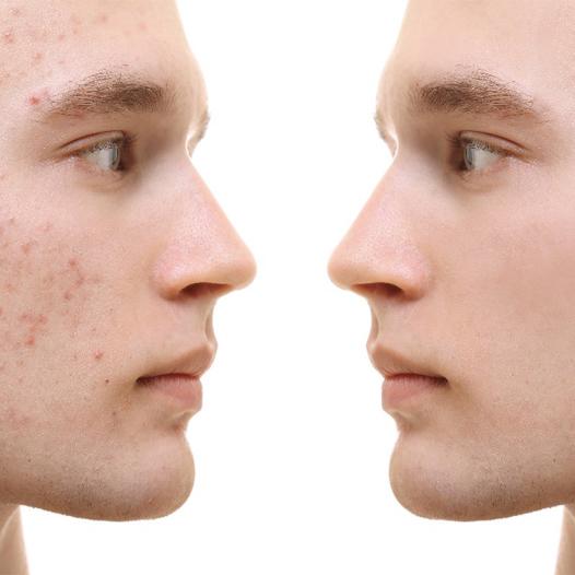 eliminar-marcas-acne-ultrasonix