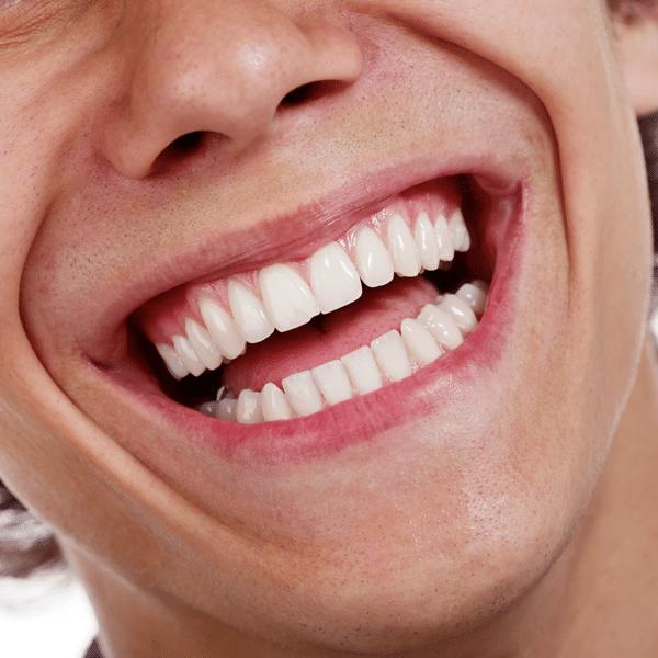 Invisalign Vs. Smile Direct Club   Mill Creek Orthodontics