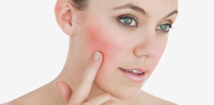 rosácea tratamiento causas curar