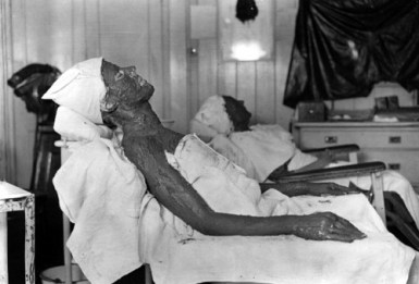 1922 kemolite mud pack treatment