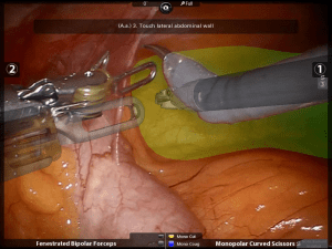 Augmented video for partial nephrectomy