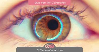 6 Preguntas sobre qué son Cataratas - mimundovisual.com