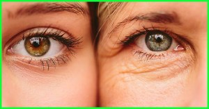 Best Time To Start Using Anti-ageing