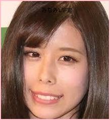 airi9 有村架純の姉藍里の顔が変わった?昔と比較画像・歯の矯正は成功?