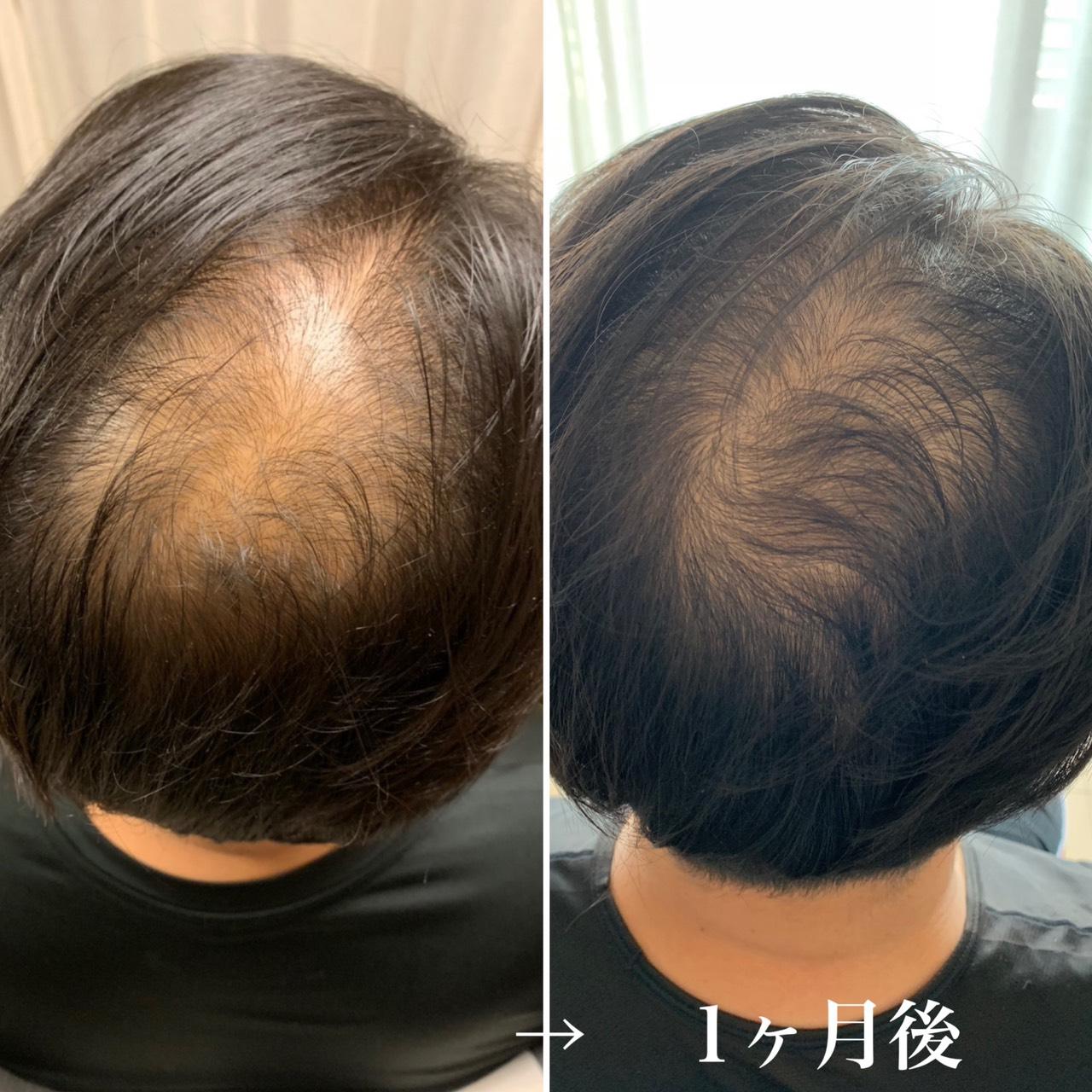 「強髪」の画像検索結果