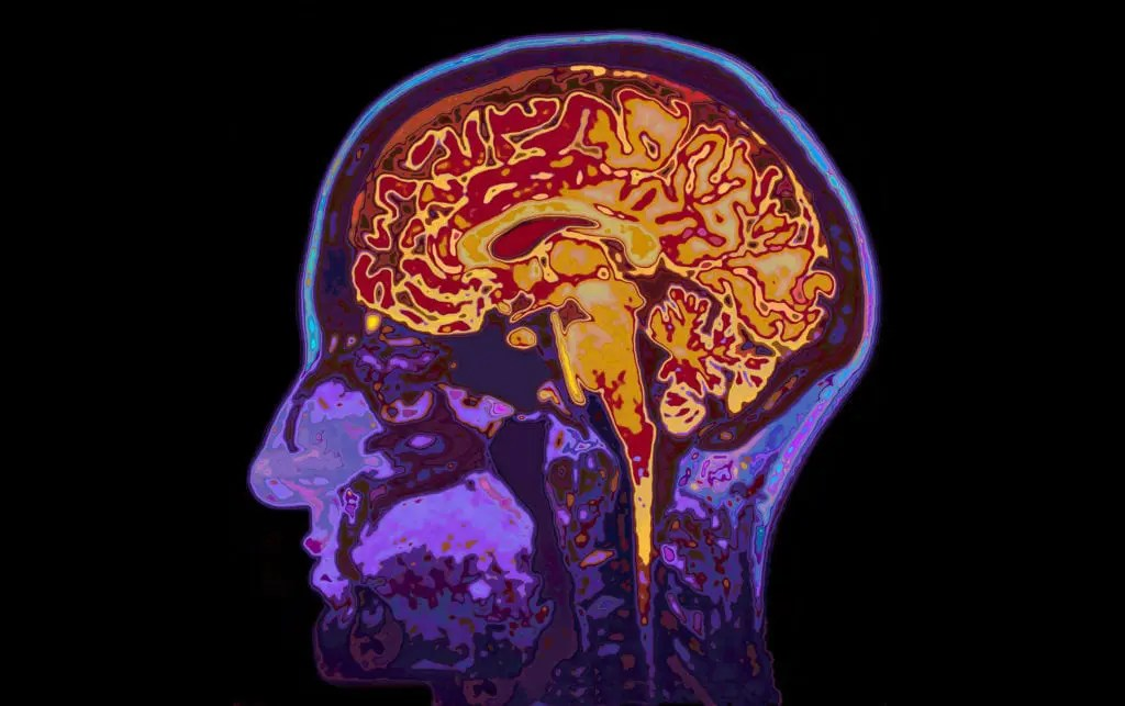 Reduce and Manage Stress - Brain scan