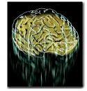lost_brain.jpg