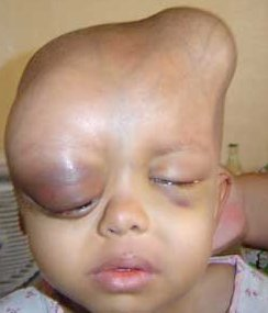 Iraqi DU Baby, head deformed