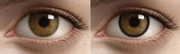 Как меняется глаз при использовании лимбальной контакной линзы