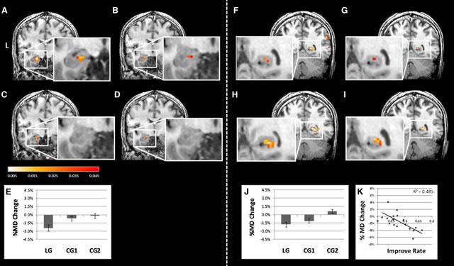 структурные изменения в мозге, зарегистрированные диффузионным томографом