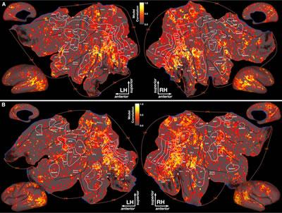 плоская модель корковой поверхности мозга