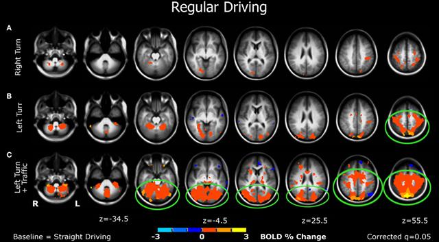 активация мозга при выполении разных задач