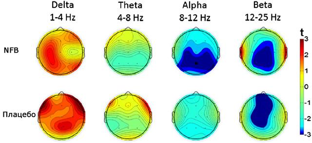 Карта электрической активности мозга