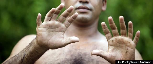 кубинец с шестью пальцами на руках