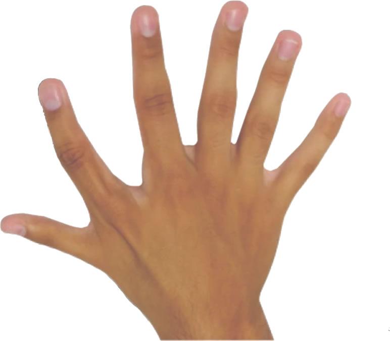 кисть с шестью пальцами