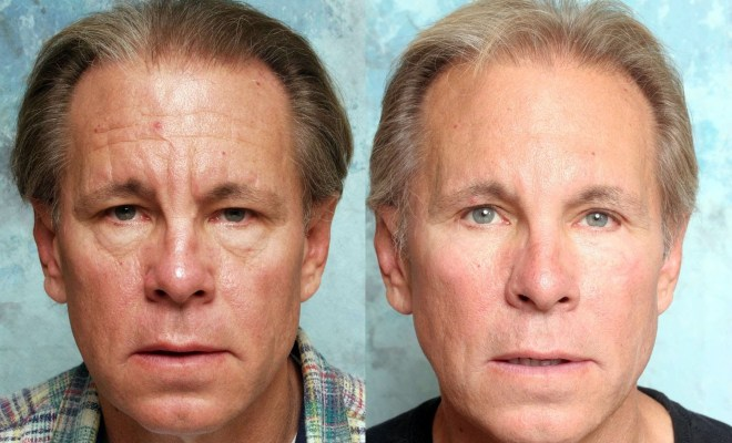 What are fairness tips for men to get glowing face? 1