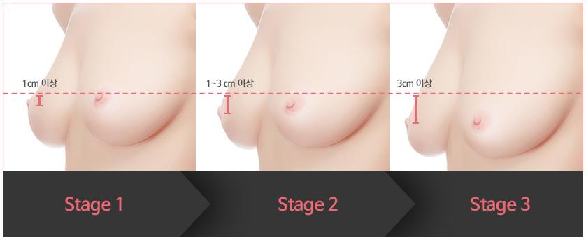 Breast Lift Surgery Breast Reduction Surgery In Korea ...