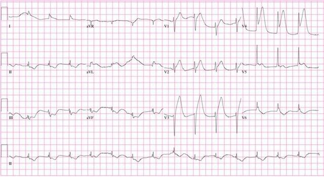 Electrocardiogram ECG-EKG graph.jpg