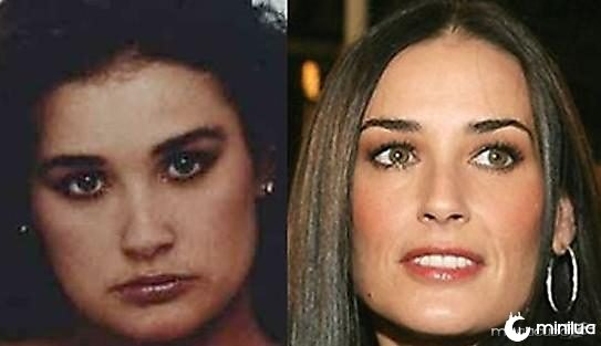 Demi Moore Surgery