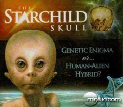 35starchild